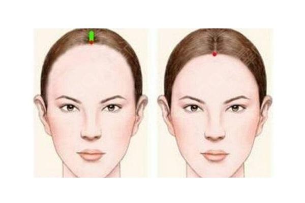 额头发际线种植多少钱-植发 手术视频