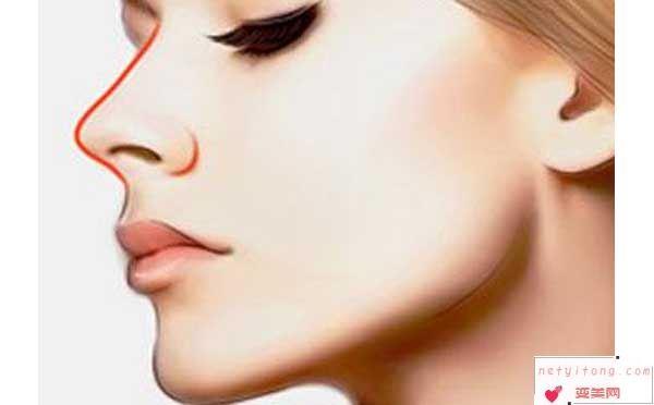 关于假体隆鼻的那些事