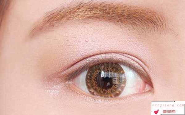 双眼皮术后消肿注意事项