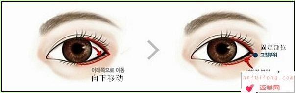 眼角开大术都有什么美容效果