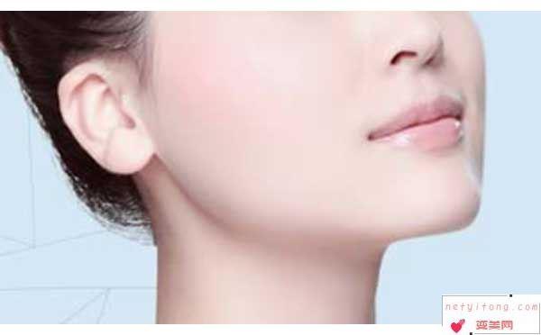 面部吸脂后会不会造成皮肤松弛?
