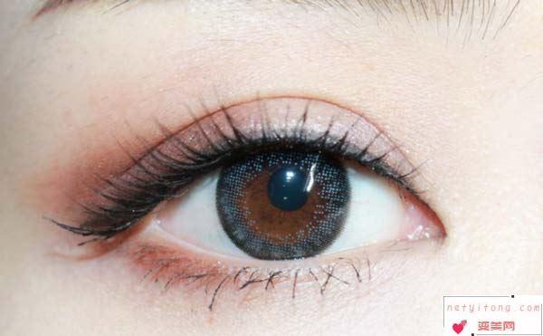 双眼皮手术术后恢复的妙招有哪些?