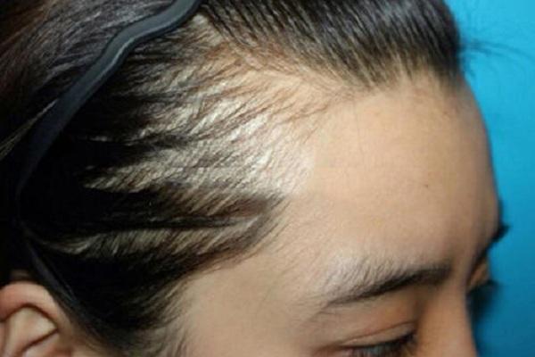 移植发际线好不好-广州植发医院TDDP技术