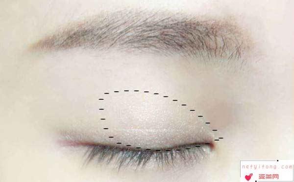 贴双眼皮贴的副作用有哪些?注意事项又有哪些?