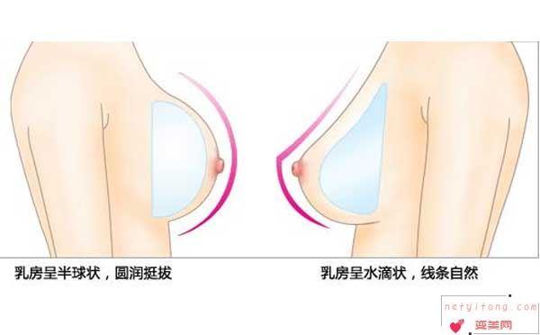 假体隆胸术后护理注意事项