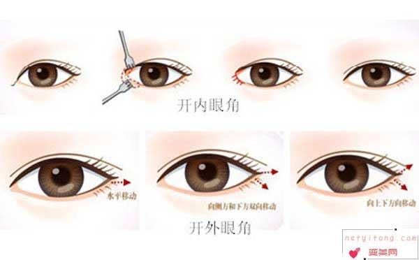 开眼角为什么有人会疤痕增生?