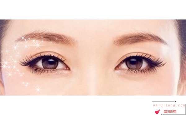 做埋线双眼皮会影响工作吗?