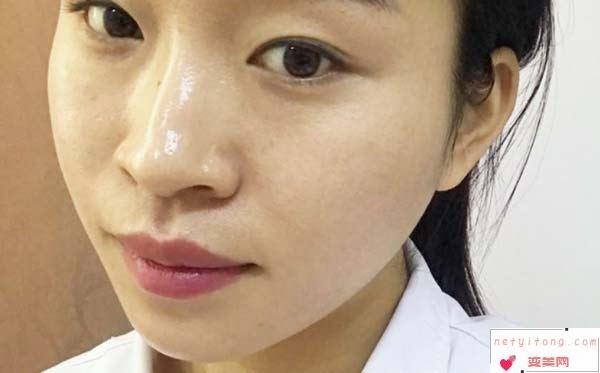 下颌角整形手术求美者要注意的几点