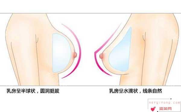 假体隆胸后多久才能变软?