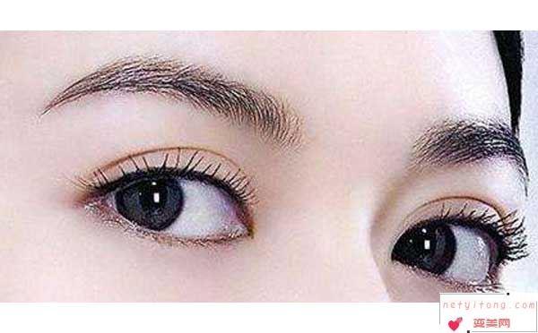 全切双眼皮恢复期影响上班吗?