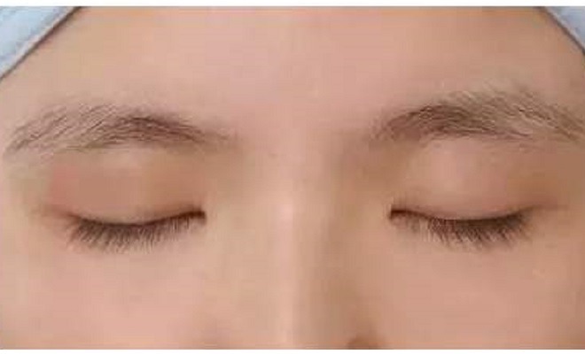 种植眉毛休眠期-植发后十多天