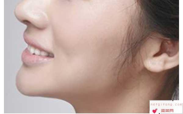 玻尿酸丰下巴会很痛吗?