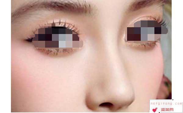 隆鼻假体取出后鼻子会变的很难看嘛?