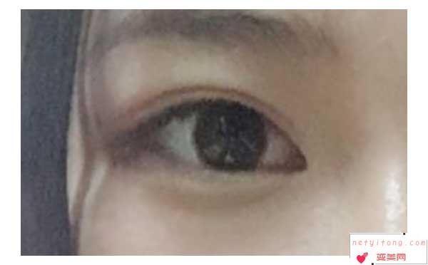 怎么割双眼皮看起来更自然好看?