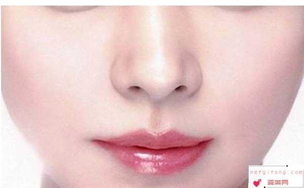自体耳软骨隆鼻尖会被吸收吗?