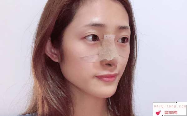 隆鼻手术失败了,该怎样修复?
