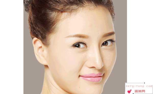 隆鼻假体在鼻子内可以放多久?