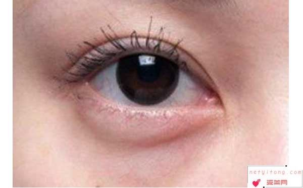 祛眼袋手术会有哪些后遗症?