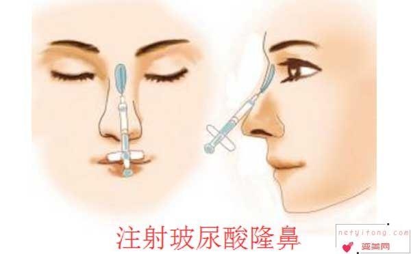 玻尿酸隆鼻效果自然吗?
