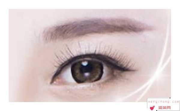 切开双眼皮术后多久能恢复