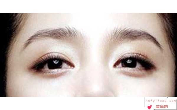 全切双眼皮多久能恢复?