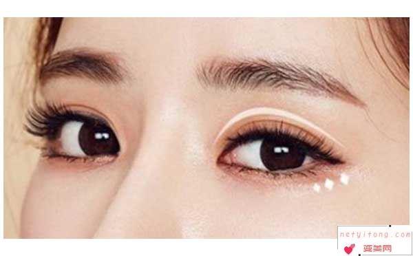 做双眼皮术后疤痕增生还能修复吗?