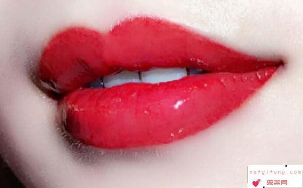 纹唇手术术后的注意事项有哪些?