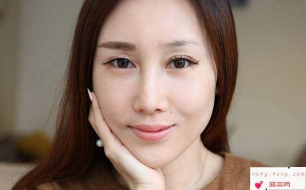 眉毛种植手术怎么样呢?