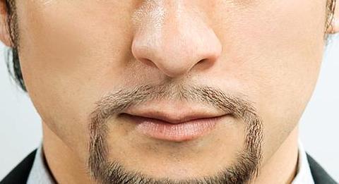 男人的第二魅力,胡须种植
