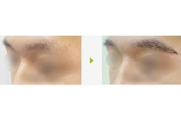 种植眉毛得多久-头发移植首选海峡植发