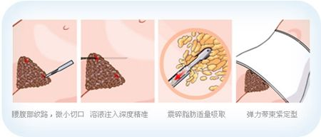 腰腹吸脂解决脂肪堆积造成的肥胖