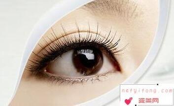 武汉五洲美莱整容双眼皮多少钱 切开双眼皮多久能恢复