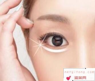 日照美丽华整形医院眼睛手术多少钱 超声波去眼袋贵吗