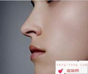北京隆鼻哪家医院好 假体隆鼻价格是多少