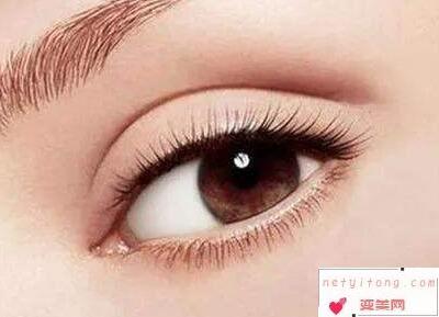 益阳人民医院整形科双眼皮手术失败修复价格是多少