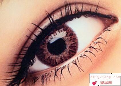 金华康美整形医院割双眼皮效果自然吗 切开双眼皮多久能恢复