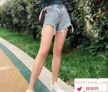 温州雅美姬整形医院腿部吸脂多少钱 多久能恢复