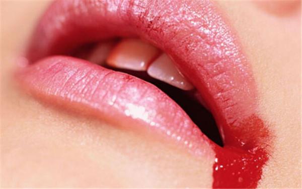 怎么快速止住嘴唇流血?