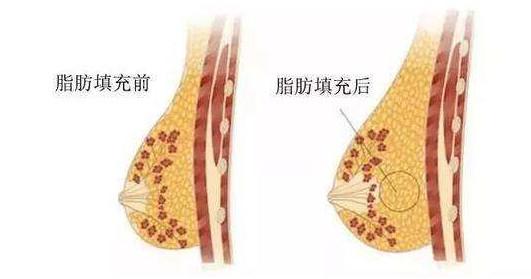 抽脂隆胸手术要用多长时间?