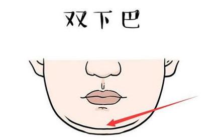 溶脂瘦双下巴的危害有哪些?