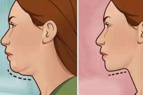 瘦双下巴的快速方法是什么?