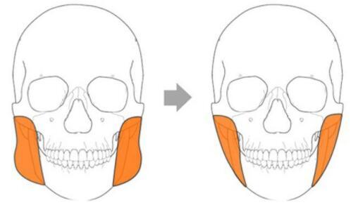 下颌角太肥?咬肌切除手术说不定就能搞定