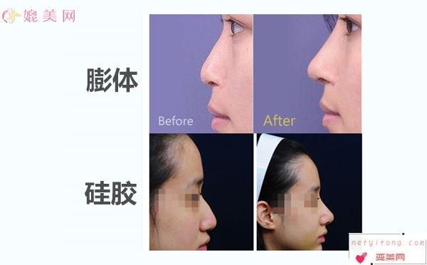 膨体隆鼻效果