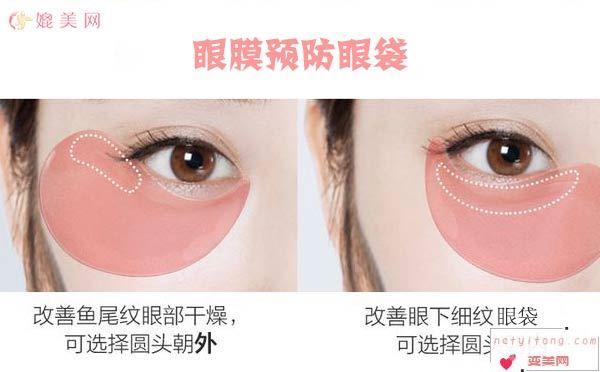 眼膜祛眼袋