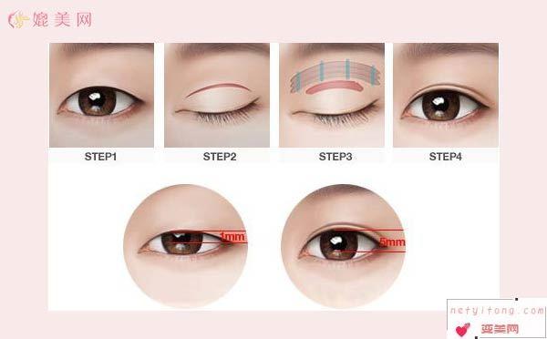 韩式双眼皮手术详解