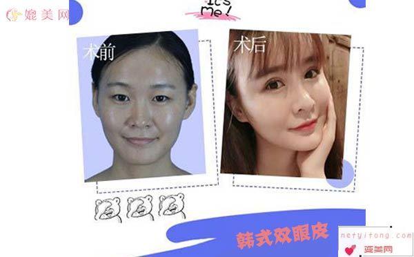 韩式双眼皮效果