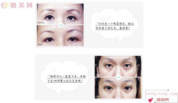 玻尿酸丰眼窝效果