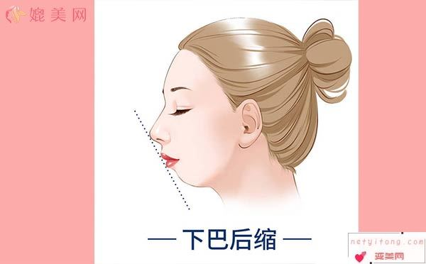玻尿酸对下巴后缩严重者效果不佳