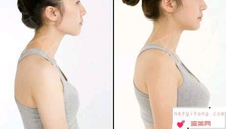 自体脂肪丰胸手术会不会疼?做几次才能达到效果?