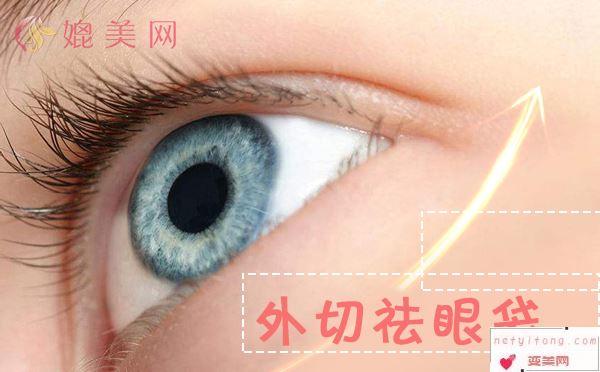 40岁以上的女性还能外切祛眼袋吗?外切祛眼袋该如何护理?